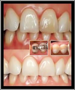 tandblekning pris tandläkare